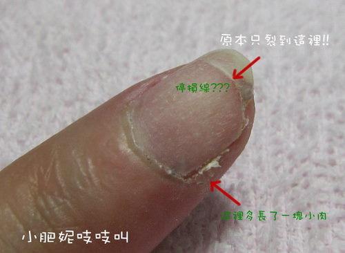 王建民指甲—恐怖網誌、膽小勿入